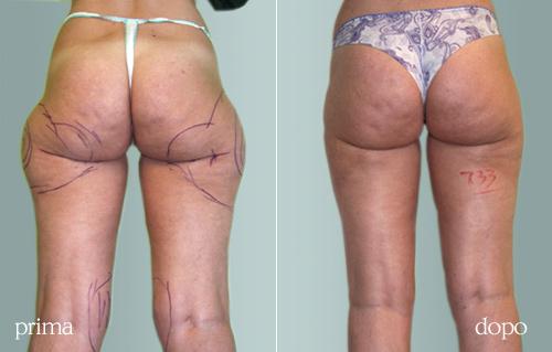 liposuzione laser foto prima e dopo