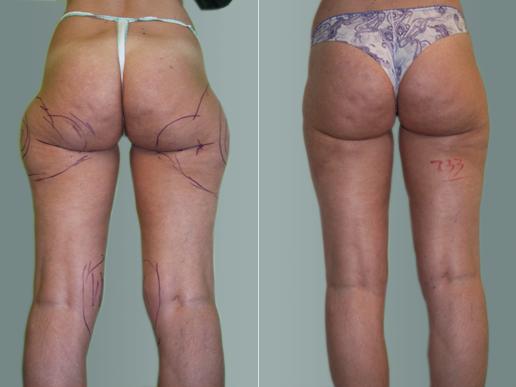 liposuzione laser foto prime e dopo